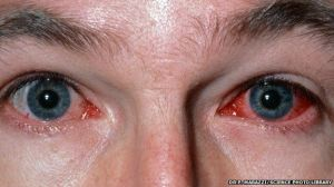_83089651_m1550250-inflamed_eyes_caused_by_viral_conjunctivitis-spl